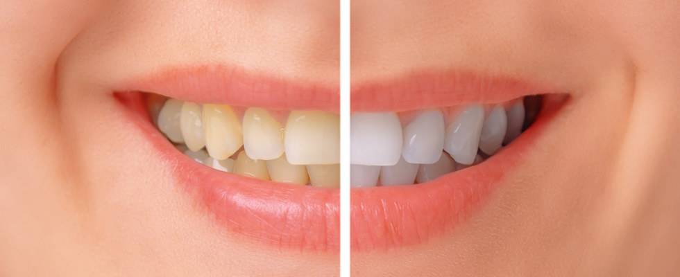 before and after teeth whitening in North Melbourne